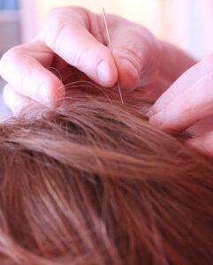 Acupuntura cuero cabelludo