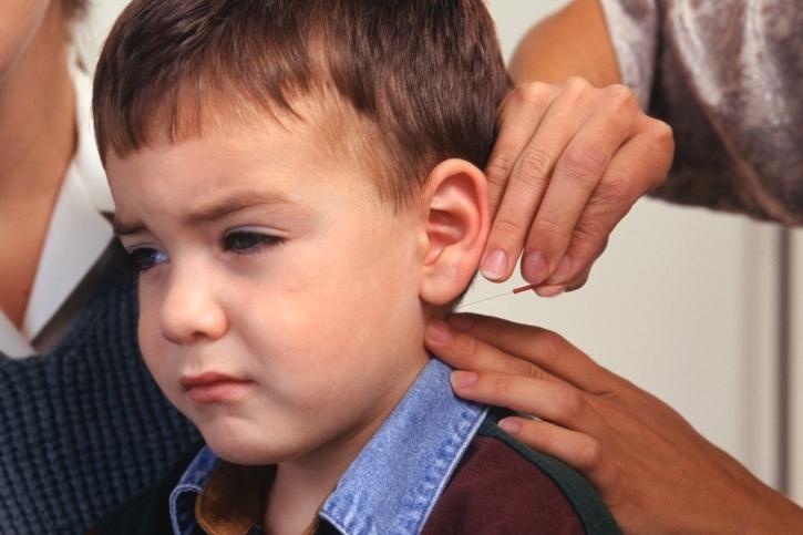 Acupuntura del cuello cabelludo para niños con autismo